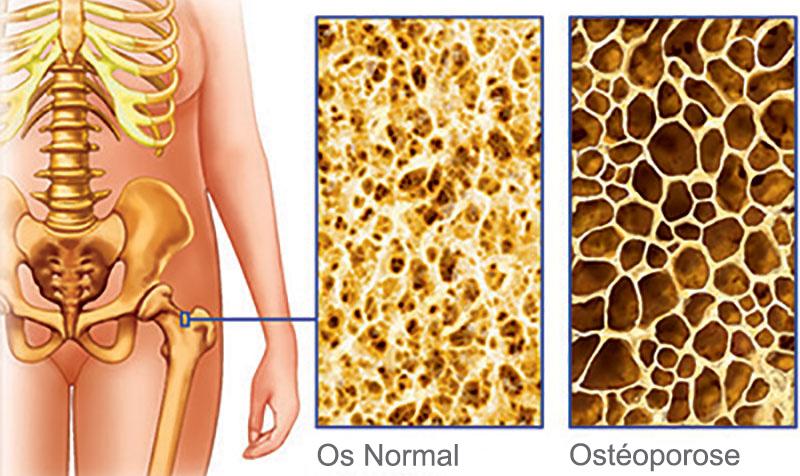 injectie osteoporose