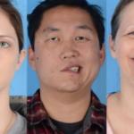 Pfizer paralysie faciale